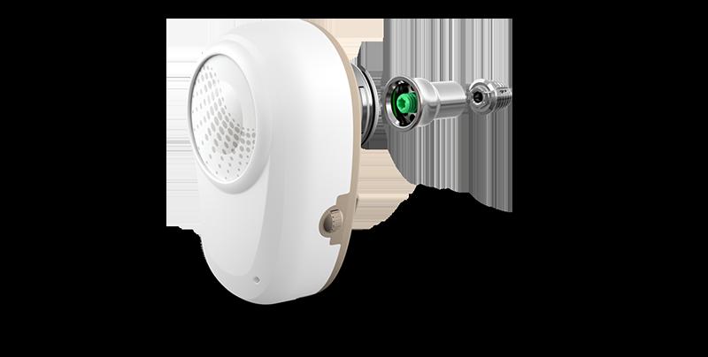 Ponto – имплантируемая слуховая система костной проводимости